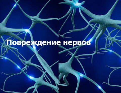 Посттравматическое повреждение нервов