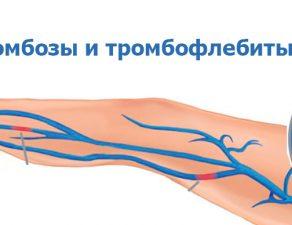 Тромбозы и тромбофлебиты