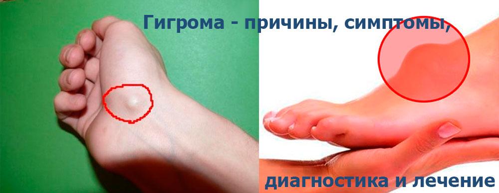 Артроз кисти симптомы лечение