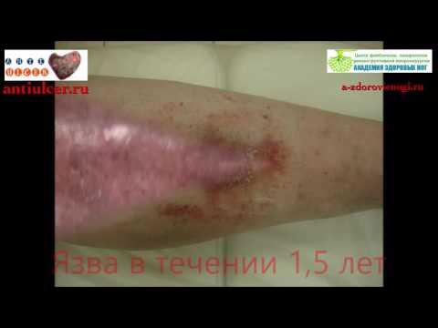 лечение трофических язв, флебология