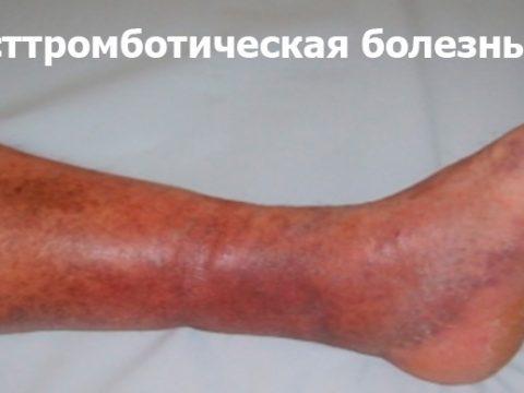заболевания вен, лечение вен