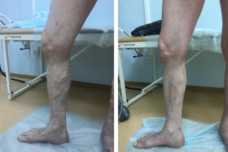 лечение варикоза, лазерная хирургия
