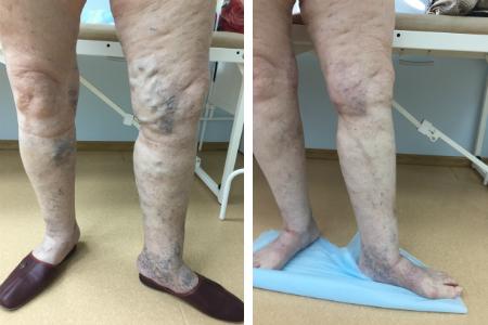 варикоз, результаты лечения варикоза