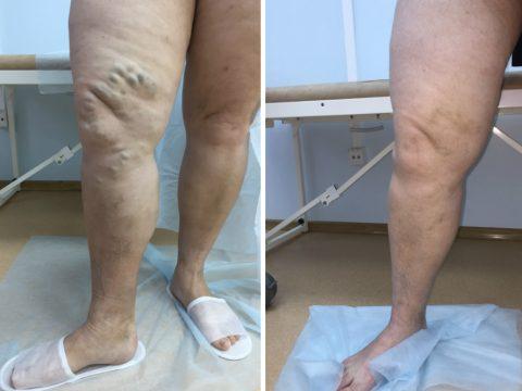 варикоз, лечение варикоза, флебология