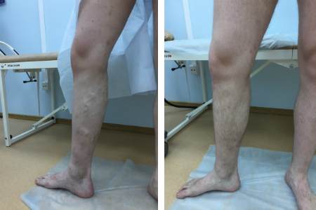 варикоз, флебология, лазерное лечение варикоза