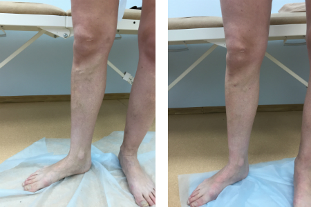лазерное лечение варикоза, варикоз, лечение варикоза