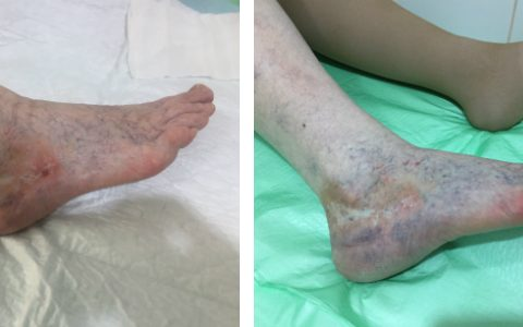 склеротерапия, флеболог, трофическая язва
