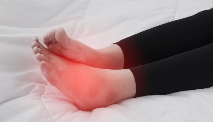 Почему отекают ноги